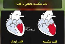 تصویر از از نظر پزشکی قلب شکسته تفاوتی با حمله قلبی ندارد