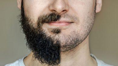 تصویر از ریش آقایان مانع سرطان پوست و چین و چروک